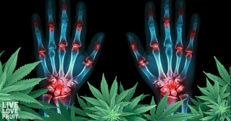 Cannabis for Arthritis: How One Plant is Being Used to Repair Arthritic Joints